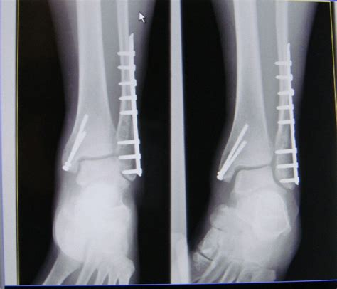 Trimalleolar Fracture  Wikipedia. Suspended Drivers License Wa. Colleges For Hotel Management. Healthcare Process Improvement Consulting. University In Alexandria Va Onelogin Vs Okta. Small Business Loans For Minorities With Bad Credit. Best Task Manager Iphone It Services Adelaide. Ipad Inventory Management Best Used Auto Loan. Wiring Fire Alarm Systems Lds Church Finances