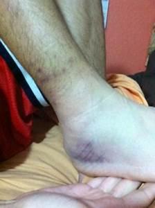 Ankle Sprain gone bad!!