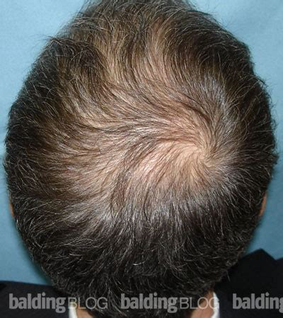 100 rogaine shedding after 1 month hair loss help forums these are my 6month results