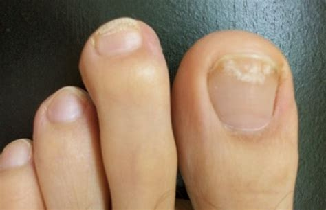 white toenails symptoms causes pictures and treatment