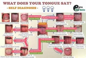 tongue health chart - Google Search | Health Love ...