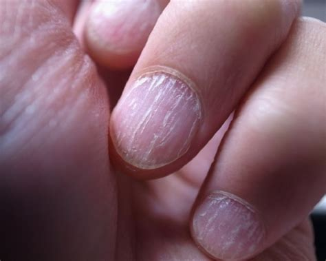 Natural Treatment For Split Nail, Home