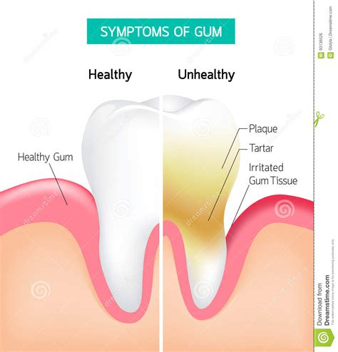 Dental Problem Health Care Comparison Of Healthy And. Saya Signs. Dehydrated Signs. Headmaster Signs Of Stroke. Body Weakness Signs. Conversation Starters Signs. Green Rectangle Signs. Wheelchair Signs. Hazardous Signs Of Stroke