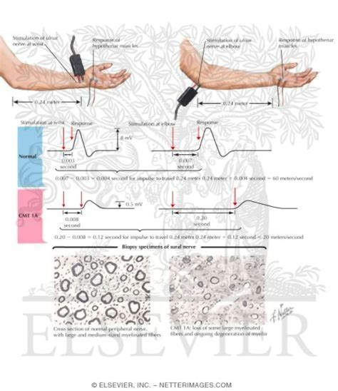 Hereditary Motorsensory Neuropathy Type I Motor Nerve. Cheap Injection Moulding Orange Bedroom Colors. Where To Sell Engagement Rings. Identity Theft Prosecution Ez Auto Insurance. Air Conditioning Repair Kansas City. Law Firm Marketing Los Angeles. Pediatrician Job Availability. Bloomingdales Rug Cleaning Tjc Apache Access. Sports Prediction Market How To Drop Body Fat