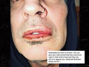 Tommy Lee's Son Breaks Silence After 'Assaulting' His ...