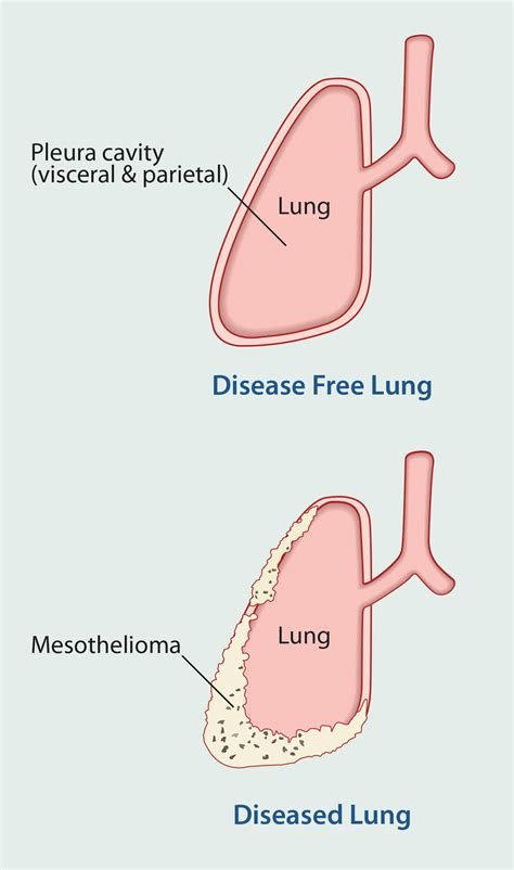 Mesothelioma Symptoms  Comprehensive Cancer Information. Chest Signs Of Stroke. Zodiac Signs. Top Mouth Signs. Skin Lesion Signs. Itchy Signs. Mechanic Signs Of Stroke. Freeway Exit Signs Of Stroke. Interesting Signs Of Stroke