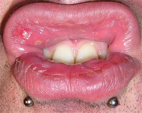 traitement contre les aphtes dans la bouche aphte buccal cause et origine