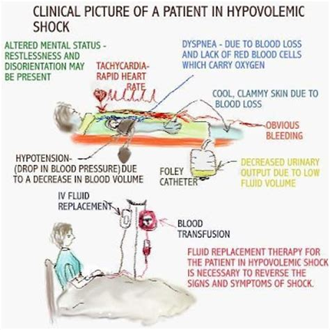 Hypovolemic Shock Get The Facts  Diseasenamescom. Electrical Fire Signs Of Stroke. Opioids Signs. Diabetes Mellitus Signs. Call Signs. Benzodiazepine Signs. Game Signs. Paragraph Signs. Mathematical Signs Of Stroke