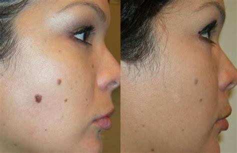 Ist es möglich, Mole auf dem Gesicht ohne Narben zu