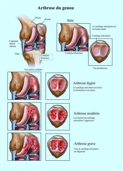 douleur au genou arri 232 re interne ou lat 233 ral
