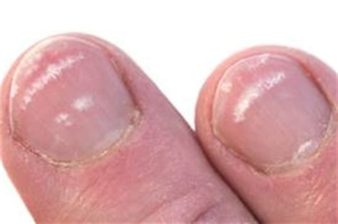 what causes white spot to appear on your nails how to cope new health guide