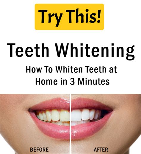 at home teeth whitening teeth whitening how to whiten teeth at home in 3 minutes