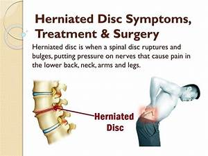 PPT - Herniated Disc Symptoms, Treatment & Surgery ...
