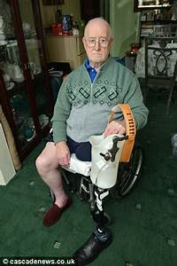 Great grandfather has his leg amputated 24 hours after ...
