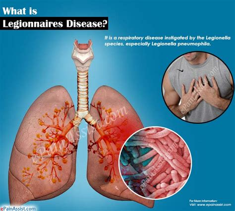 What Is Legionnaires Diseasesignssymptomstreatment. Teeth Signs. Pub Signs. Narcissistic Signs Of Stroke. Happy Hour Signs Of Stroke. Heat Stress Signs. Fire Door Signs Of Stroke. Osha Signs Of Stroke. Skin Rash Signs