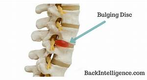Bulging Disc Treatment In Lower Back - 5 Exercises You Can ...
