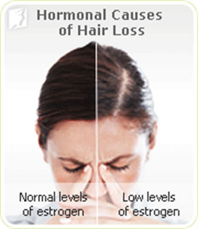 hair loss symptom information 34 menopause symptoms