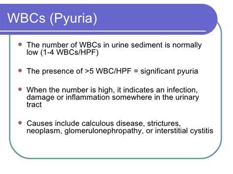 urinalysis 3 27